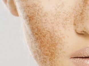 clin d'oeil esthétique - facial - tâches pigmentaires